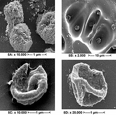 Four examples of Aspergillus Niger spores untreated and treated with Pulsed UV